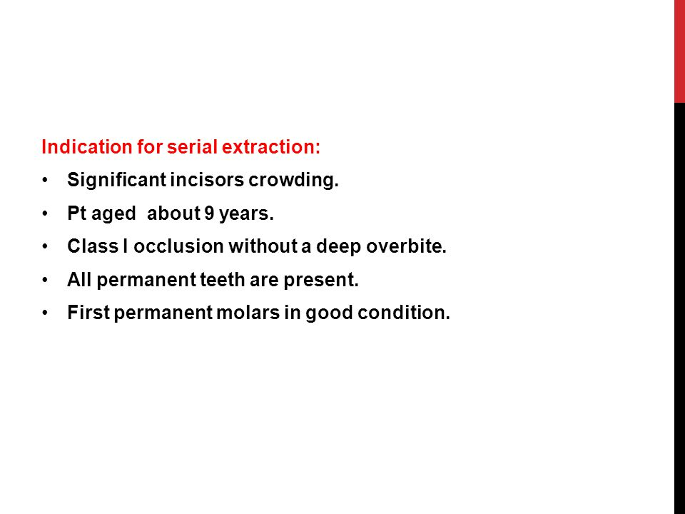 Indication for serial extraction: