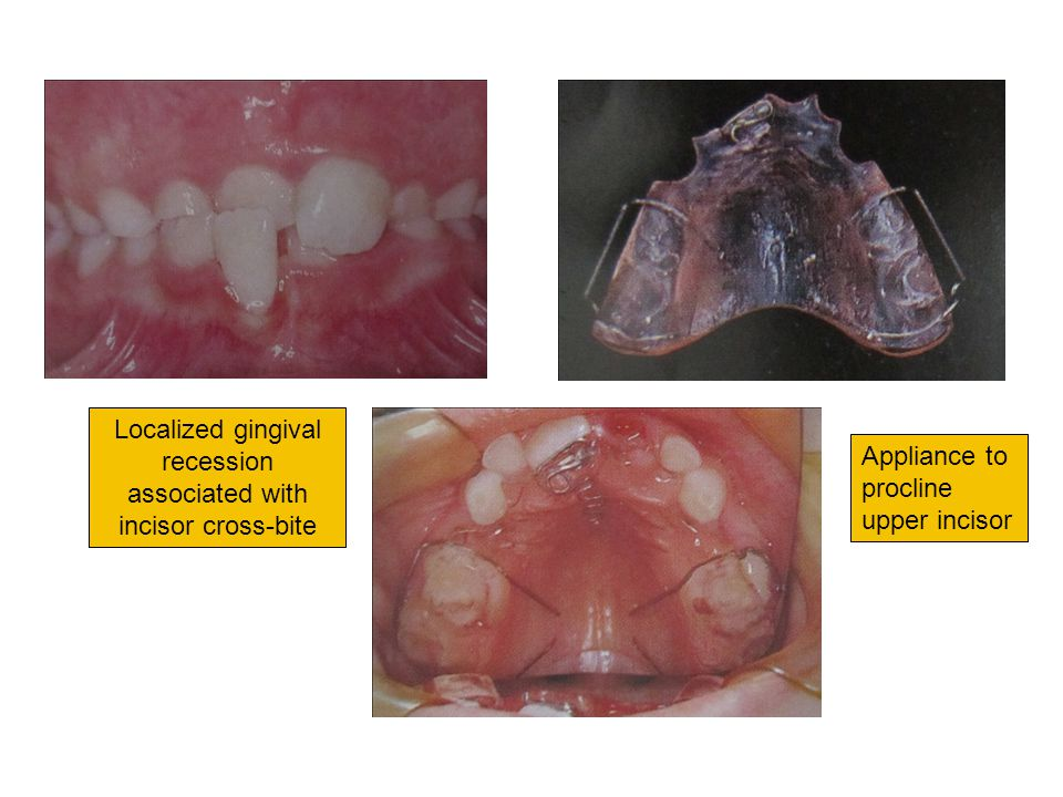 Localized gingival recession associated with incisor cross-bite