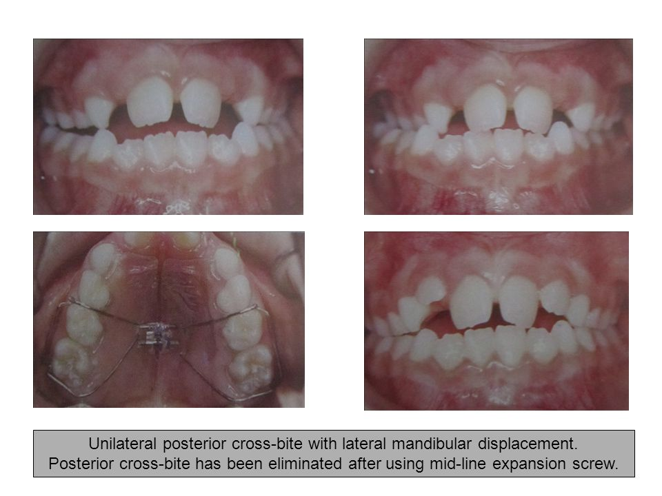 Unilateral posterior cross-bite with lateral mandibular displacement.