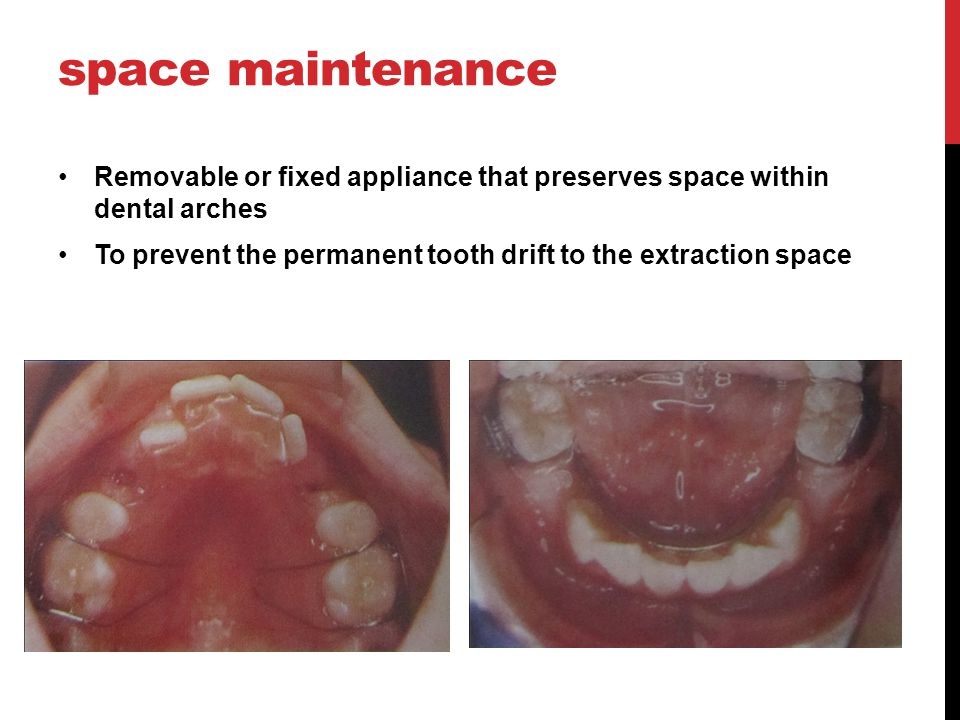 space maintenance Removable or fixed appliance that preserves space within dental arches.