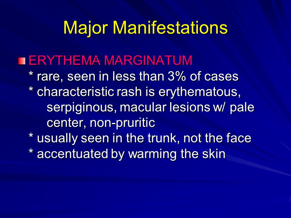 Major Manifestations