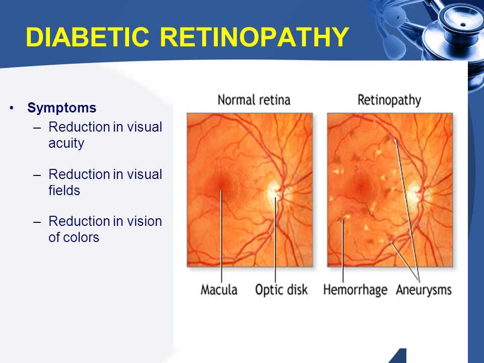 DIABETIC RETINOPATHY Symptoms Reduction in visual acuity