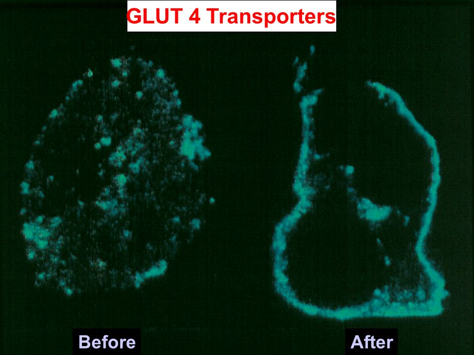GLUT 4 Transporters Before After