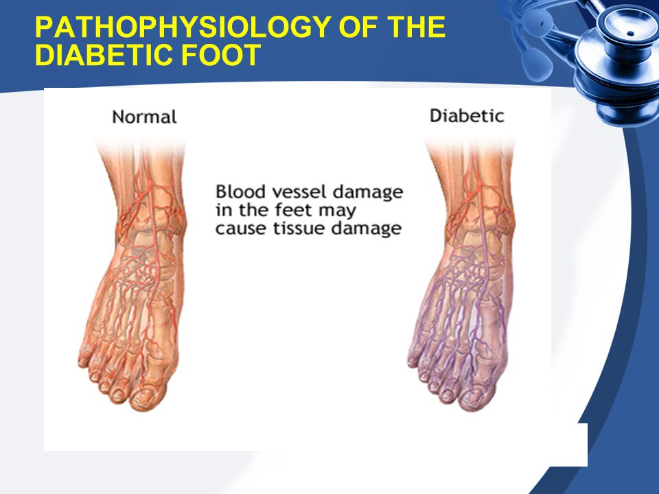 PATHOPHYSIOLOGY OF THE DIABETIC FOOT