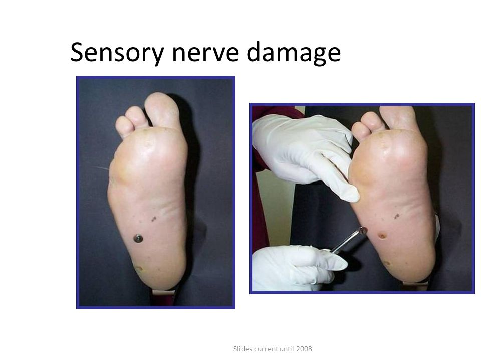 Sensory nerve damage