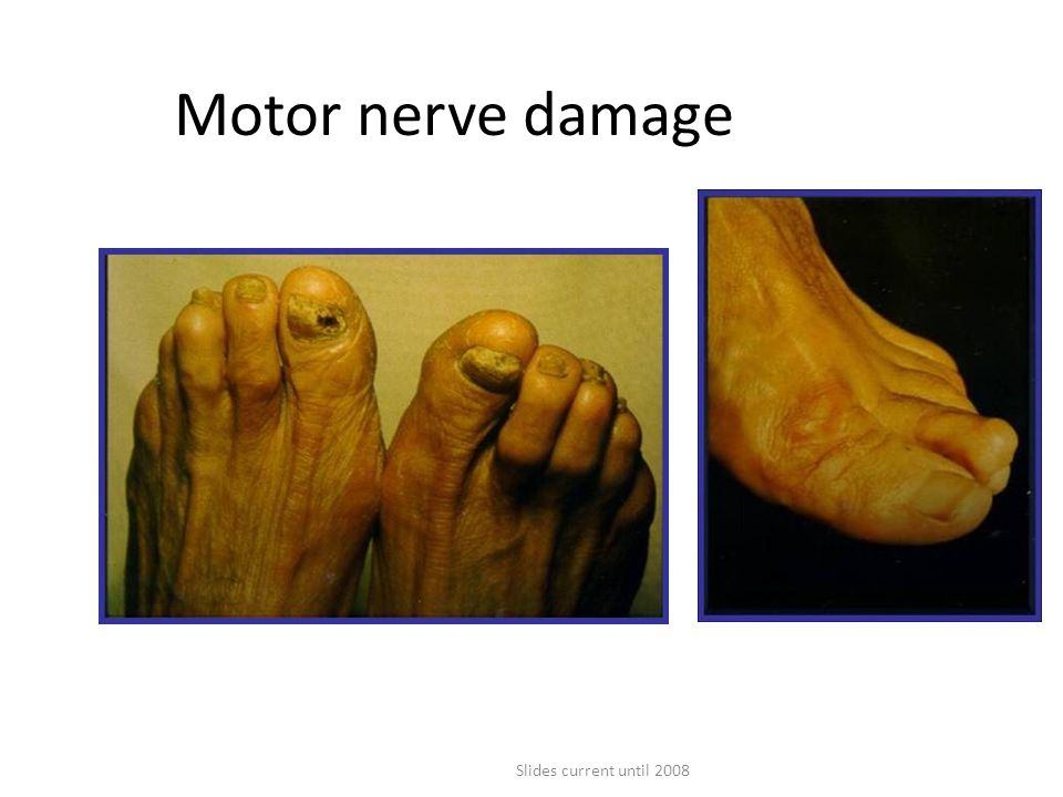 Motor nerve damage As well as affecting the sensory nerves, peripheral neuropathy affects the motor nerves of the feet.