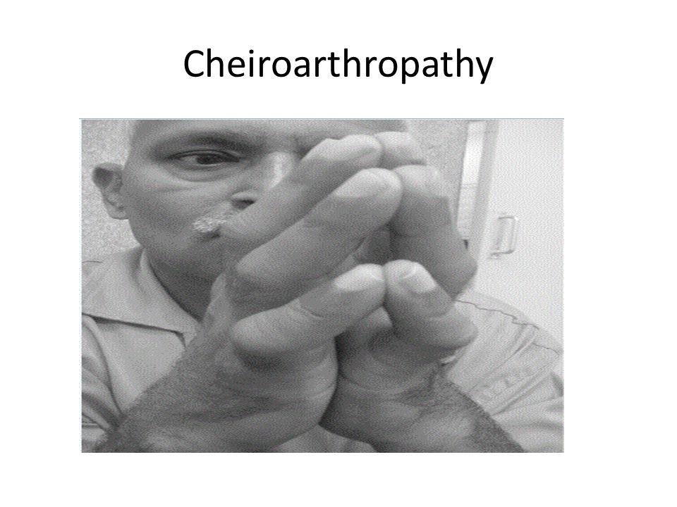 Cheiroarthropathy
