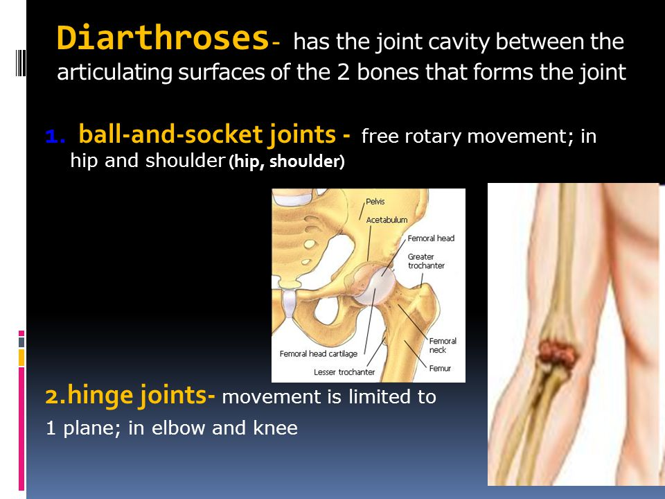 Diarthroses- has the joint cavity between the articulating surfaces of the 2 bones that forms the joint