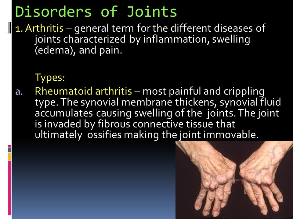 Disorders of Joints 1. Arthritis – general term for the different diseases of joints characterized by inflammation, swelling (edema), and pain.