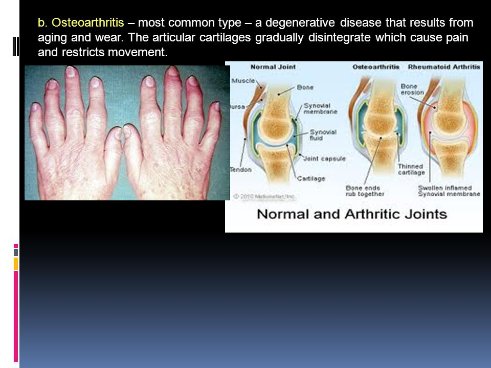 b. Osteoarthritis – most common type – a degenerative disease that results from aging and wear.
