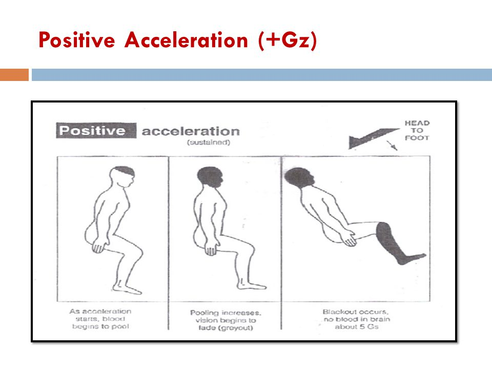 Positive Acceleration (+Gz)