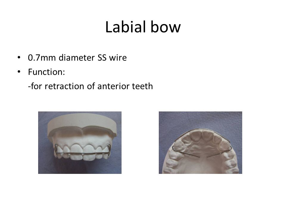 Labial bow 0.7mm diameter SS wire Function: