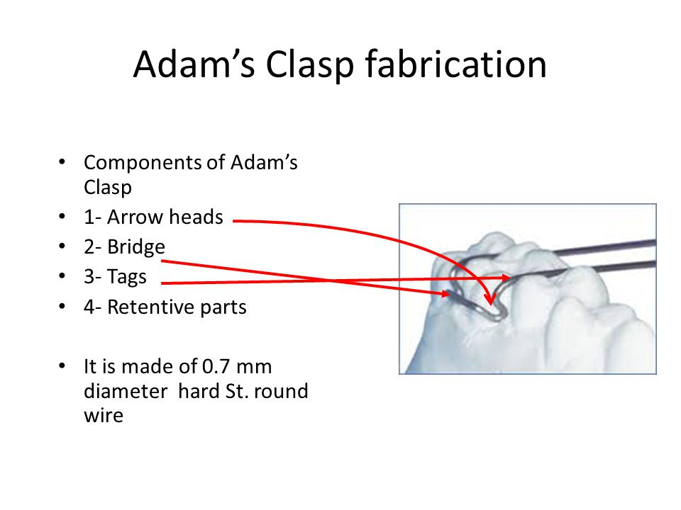 Adam's Clasp fabrication