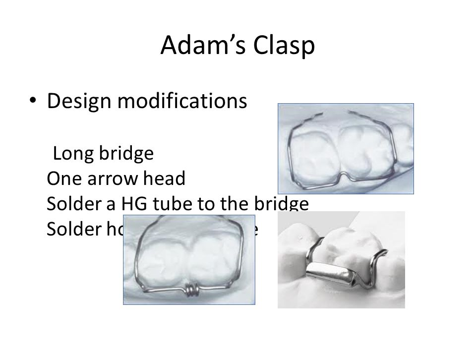 Adam's Clasp Design modifications Long bridge One arrow head