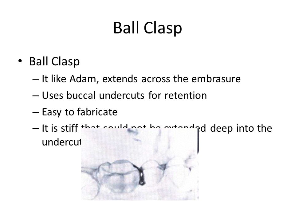 Ball Clasp Ball Clasp It like Adam, extends across the embrasure