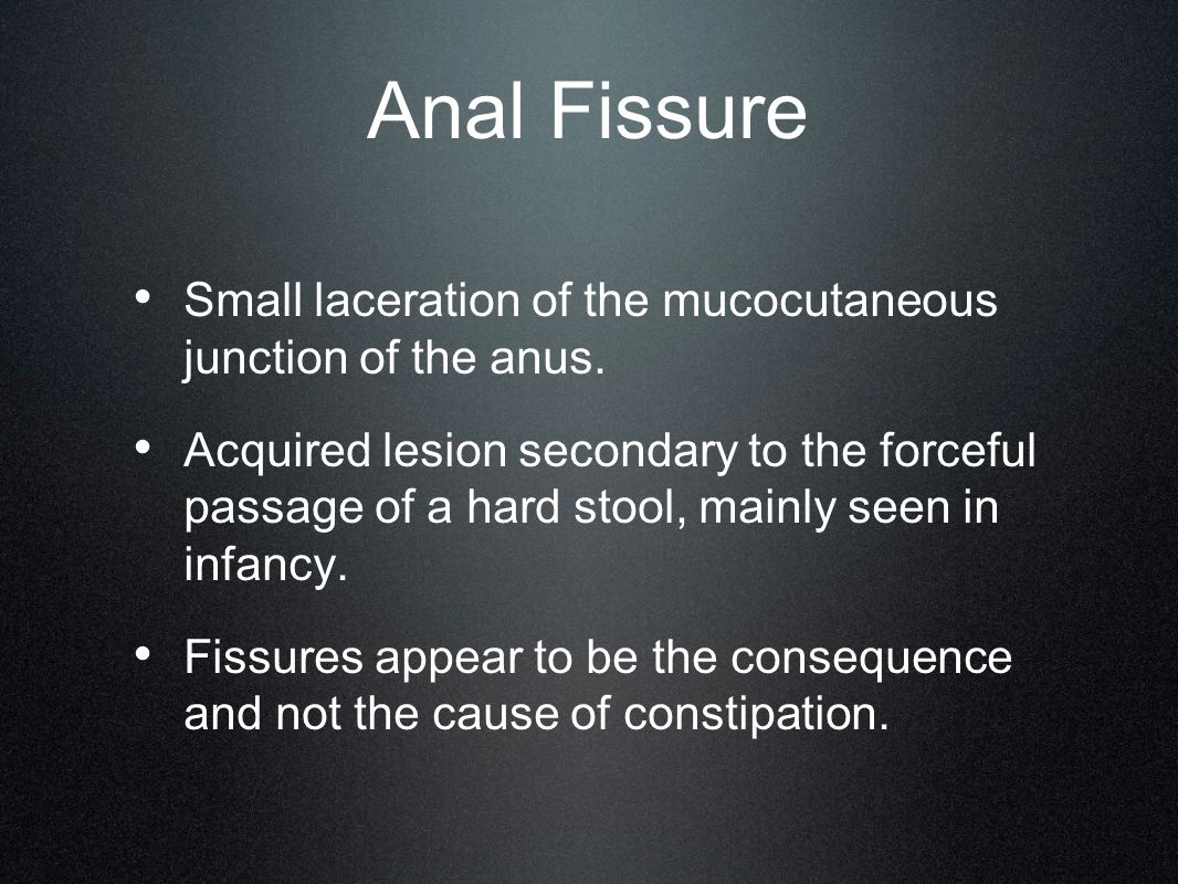Anal Fissure Small laceration of the mucocutaneous junction of the anus.