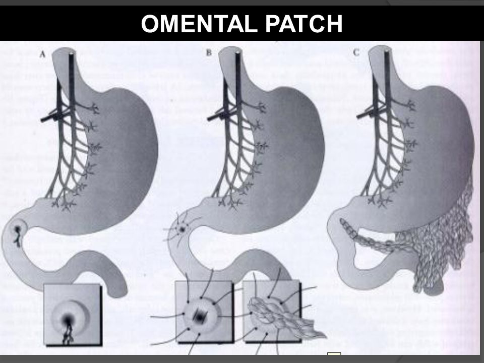 OMENTAL PATCH