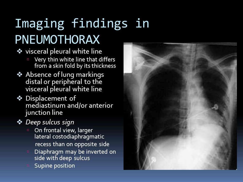 Imaging findings in PNEUMOTHORAX