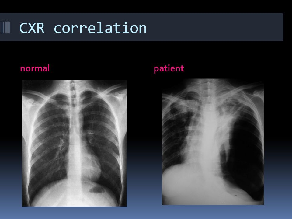 CXR correlation normal patient