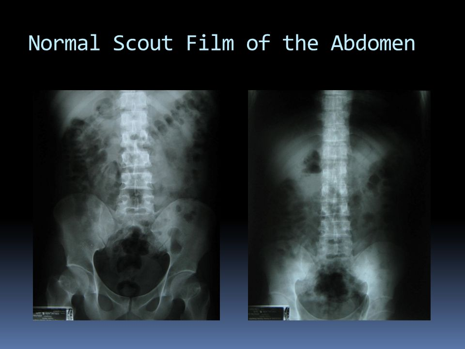 Normal Scout Film of the Abdomen