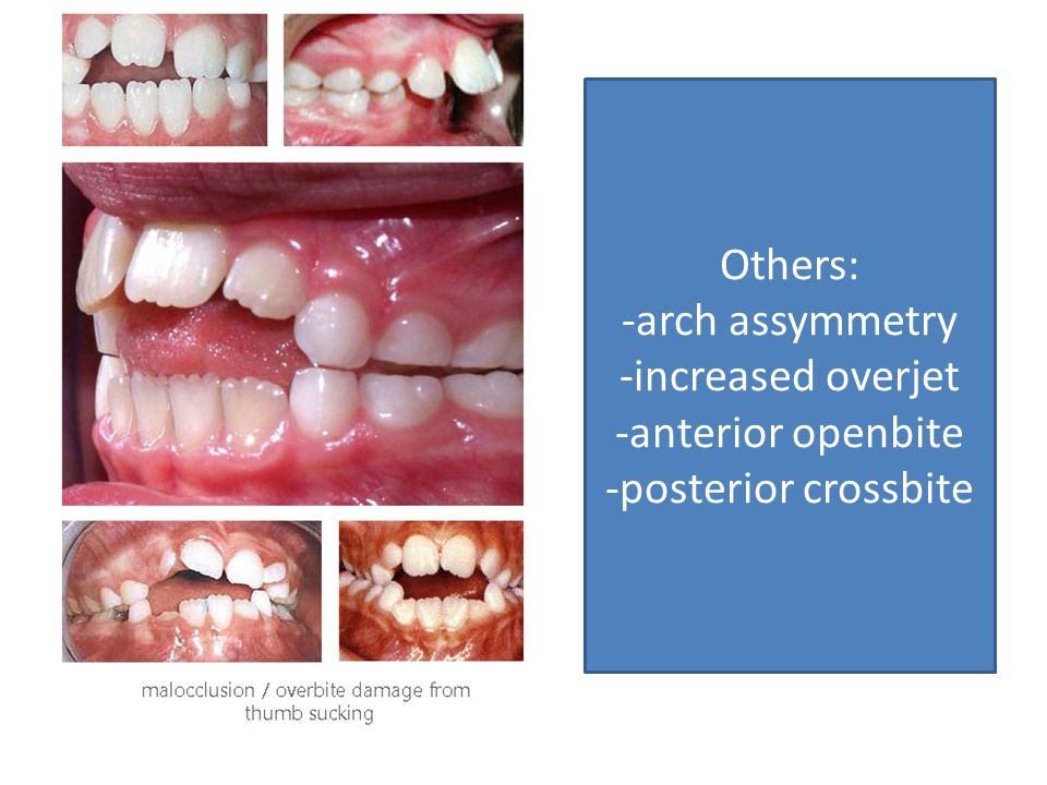 Others: -arch assymmetry -increased overjet -anterior openbite -posterior crossbite