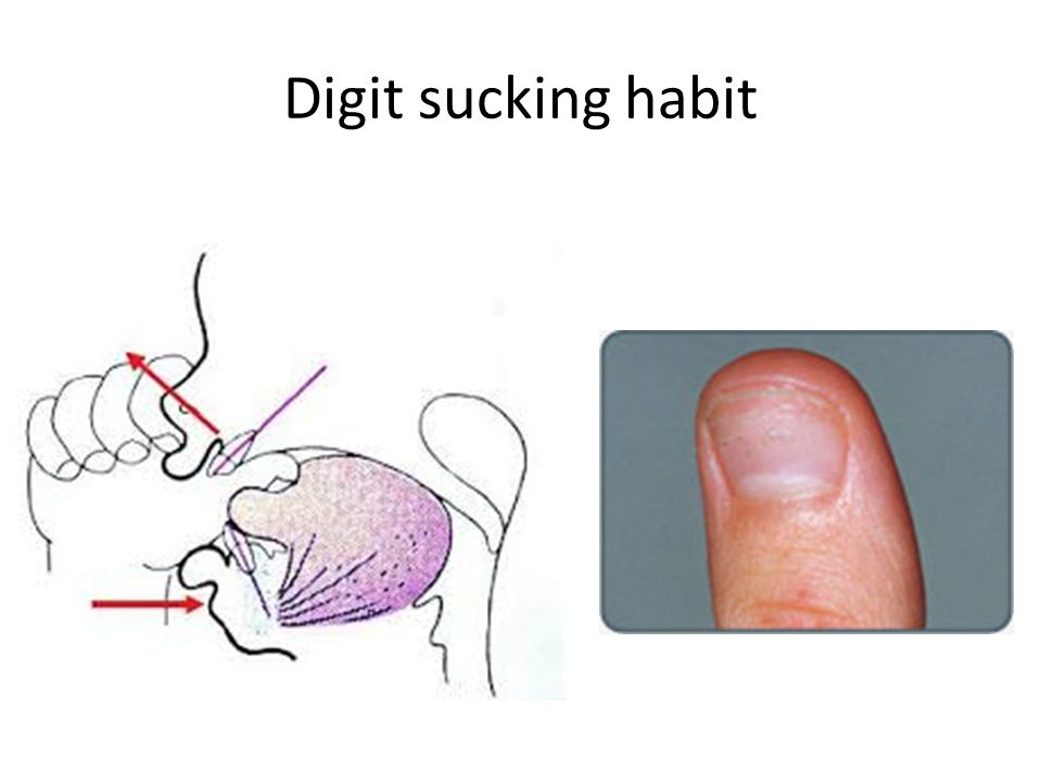 Digit sucking habit
