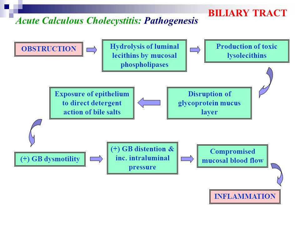 Acute Calculous Cholecystitis: Pathogenesis
