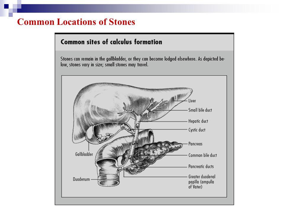 Common Locations of Stones