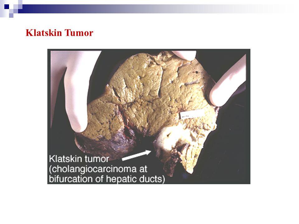 Klatskin Tumor