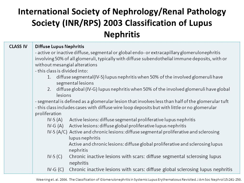 International Society of Nephrology/Renal Pathology Society (INR/RPS) 2003 Classification of Lupus Nephritis