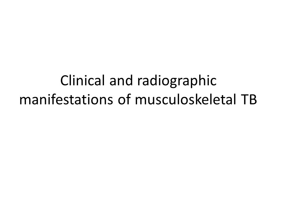 Clinical and radiographic manifestations of musculoskeletal TB