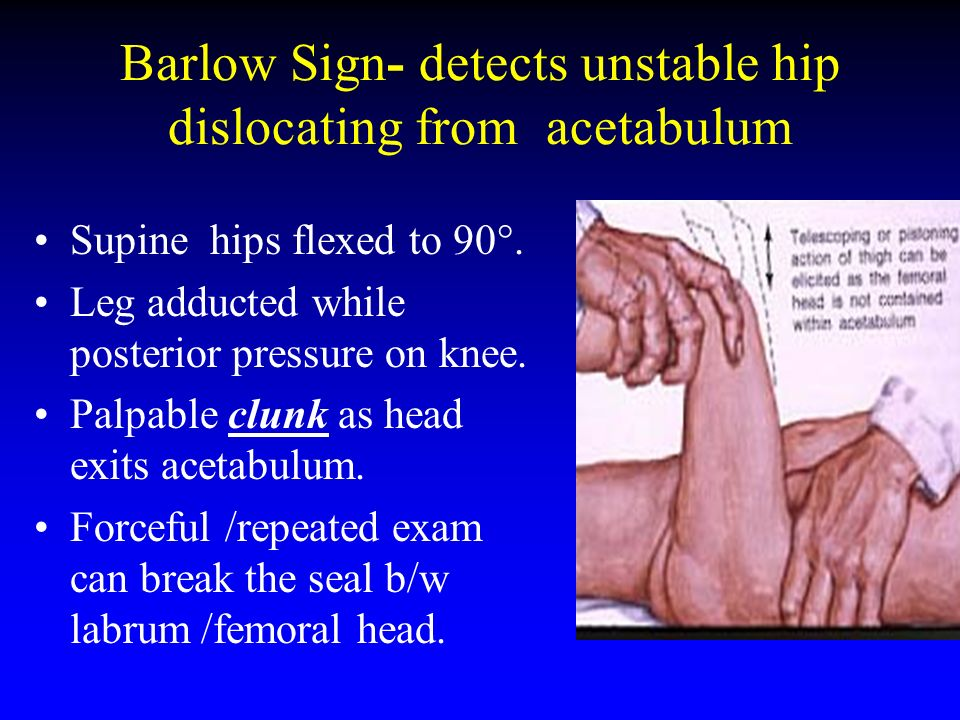 Barlow Sign- detects unstable hip dislocating from acetabulum