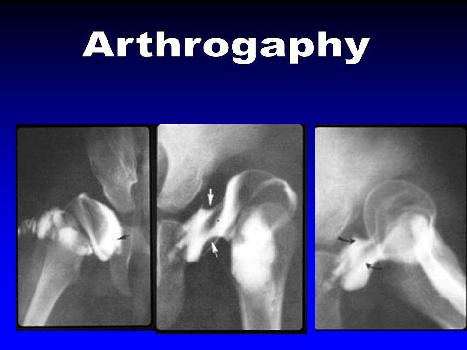Arthrogaphy