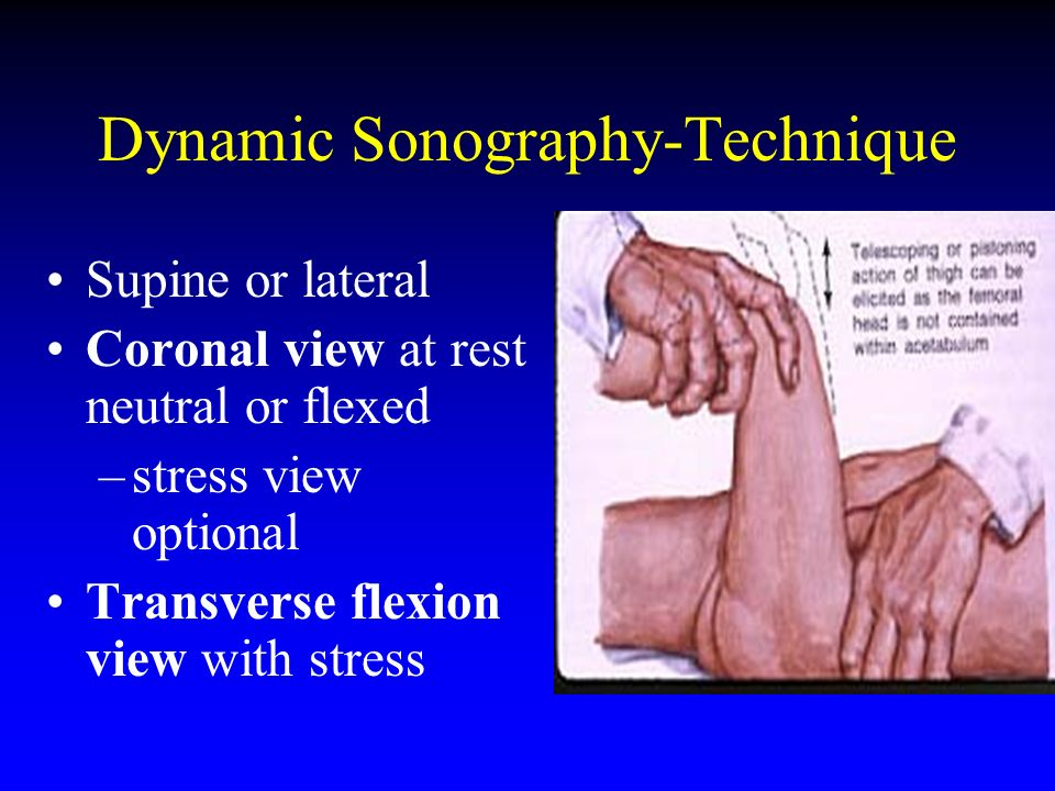 Dynamic Sonography-Technique