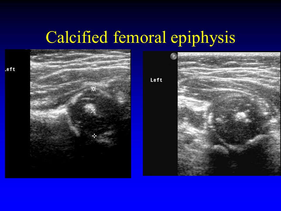 Calcified femoral epiphysis