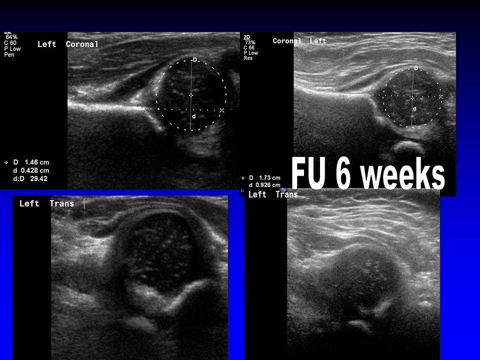FU 6 weeks