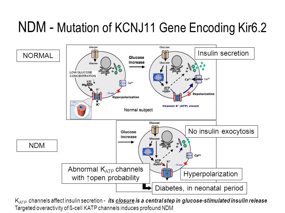 NDM - Mutation of KCNJ11 Gene Encoding Kir6.2