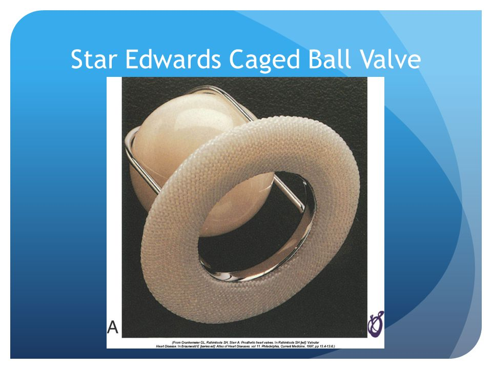 Star Edwards Caged Ball Valve