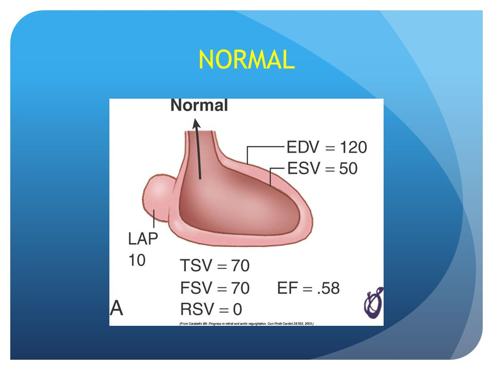 Valvular Heart Disease - ppt download
