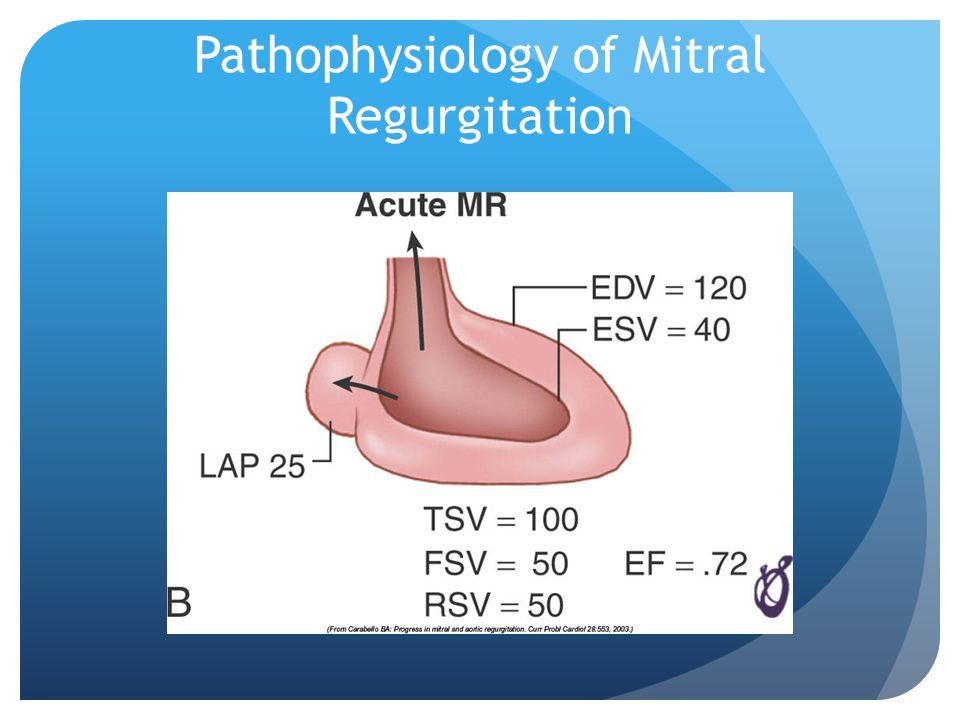 Pathophysiology of Mitral Regurgitation