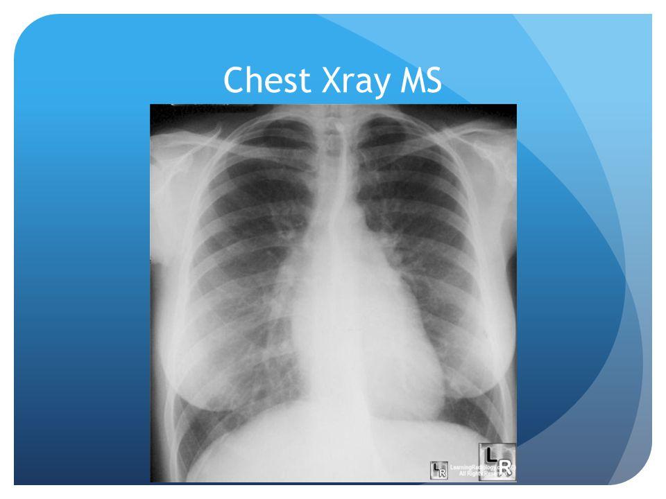 Chest Xray MS
