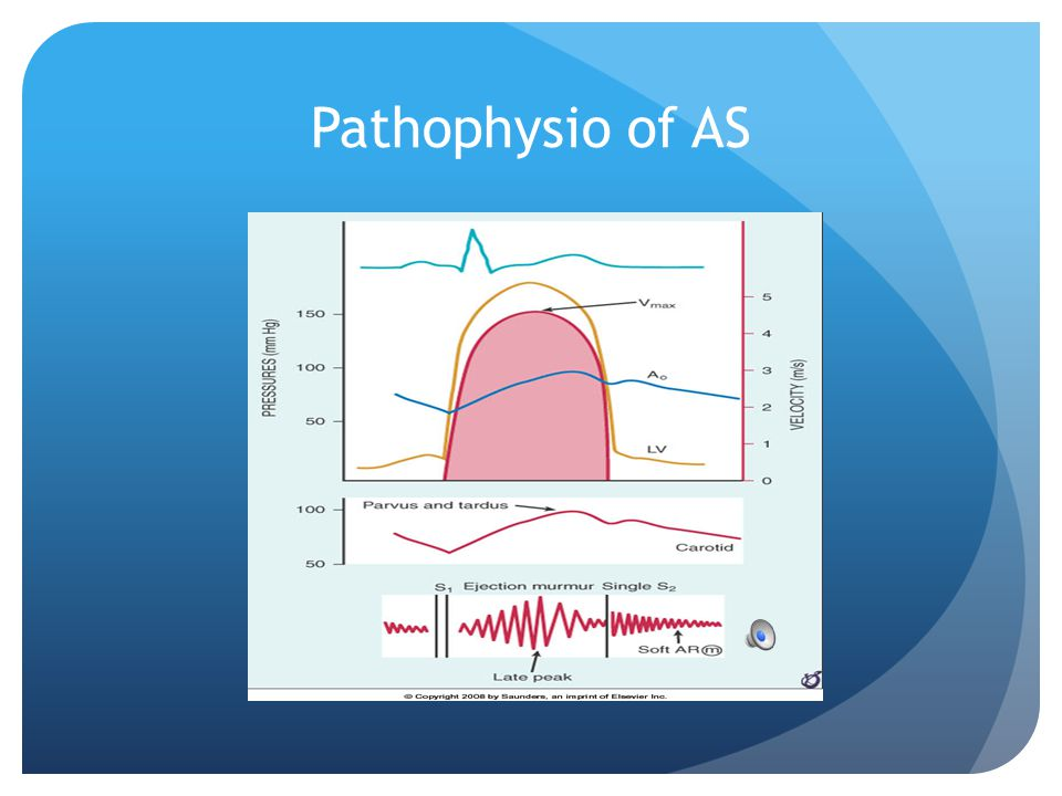 Pathophysio of AS