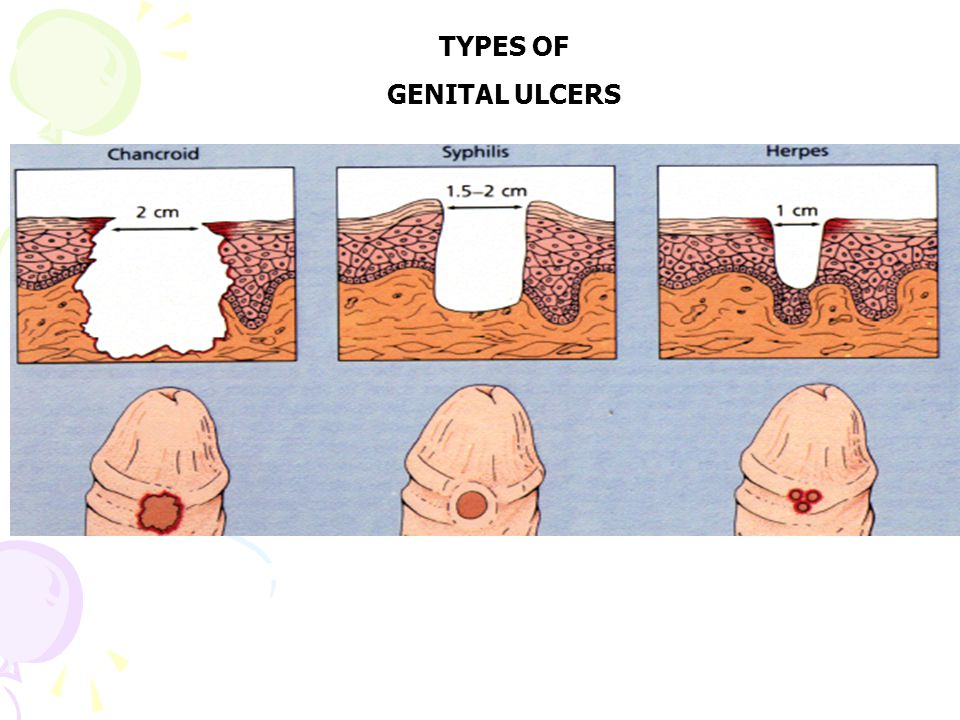 TYPES OF GENITAL ULCERS
