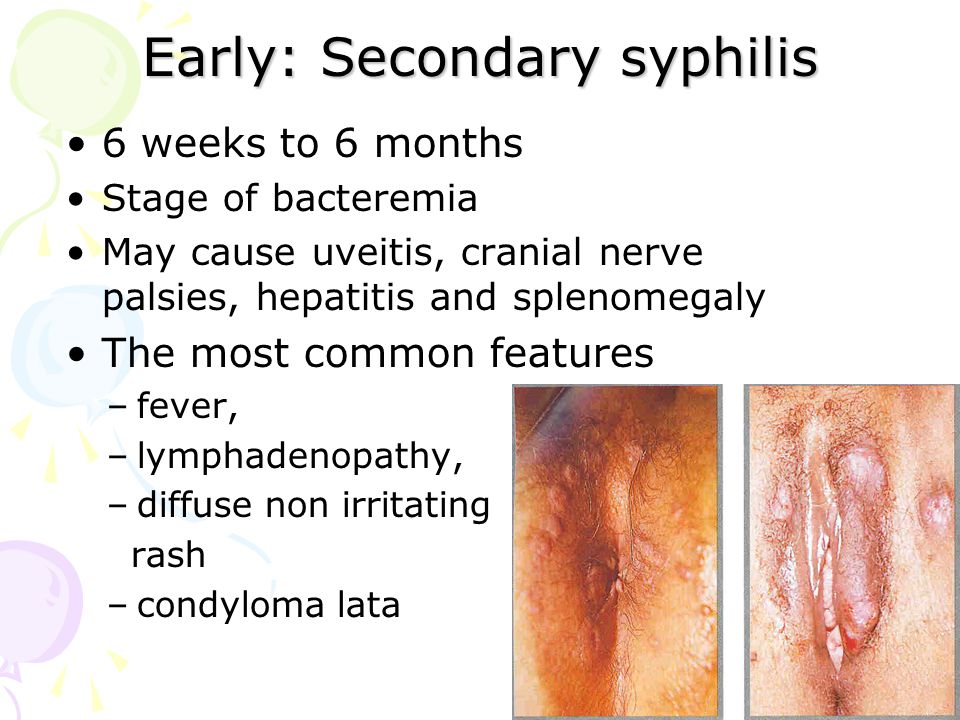 Early: Secondary syphilis