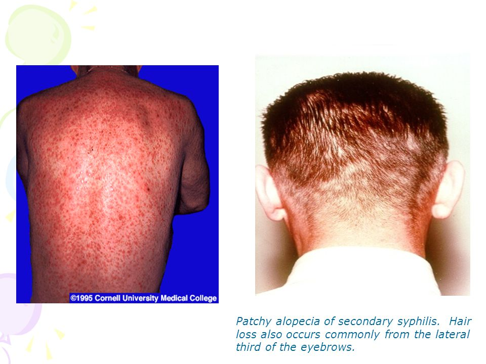 Patchy alopecia of secondary syphilis