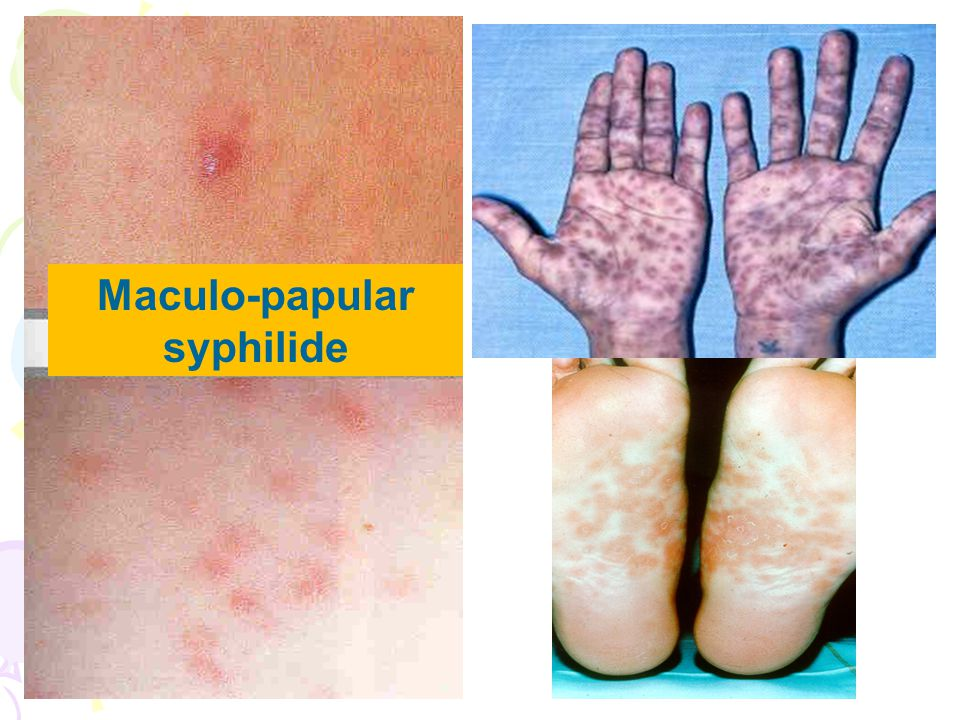 Maculo-papular syphilide
