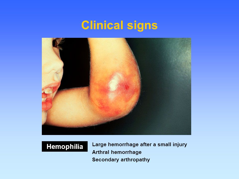 Clinical signs Hemophilia Large hemorrhage after a small injury