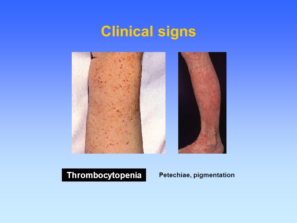 Clinical signs Thrombocytopenia Petechiae, pigmentation