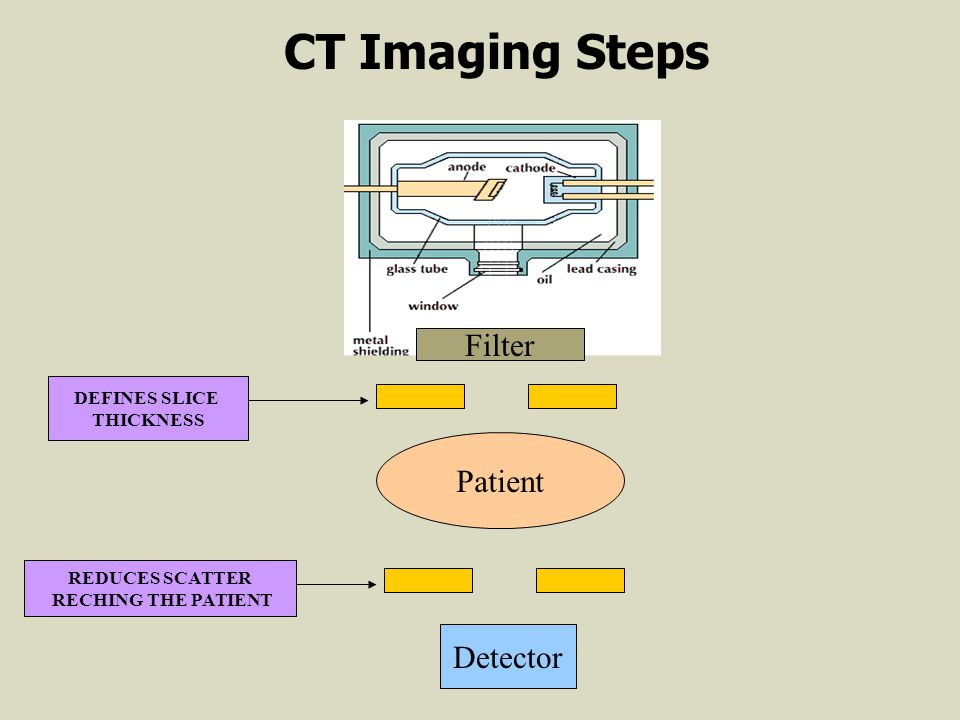 CT Imaging Steps Filter Patient Detector DEFINES SLICE THICKNESS