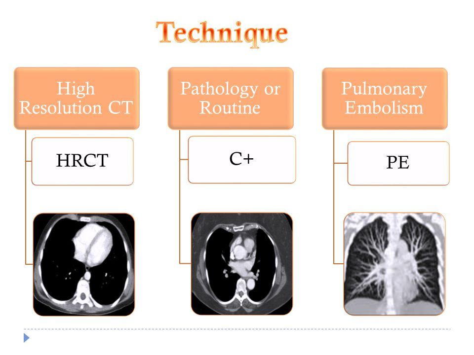 Technique High Resolution CT HRCT Pathology or Routine C+
